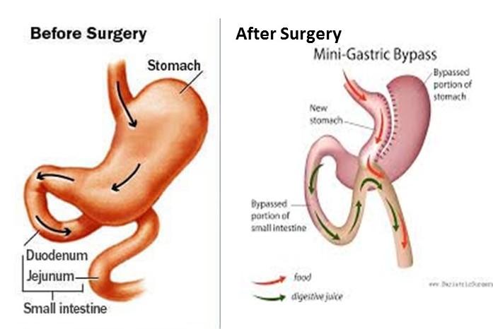 Metabolic surgery OAGB